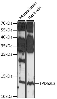 TPD52L3 Antibody - Western blot analysis of extracts of various cell lines, using TPD52L3 antibody at 1:1000 dilution. The secondary antibody used was an HRP Goat Anti-Rabbit IgG (H+L) at 1:10000 dilution. Lysates were loaded 25ug per lane and 3% nonfat dry milk in TBST was used for blocking. An ECL Kit was used for detection and the exposure time was 30S.