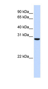 TPGS2 / C18orf10 Antibody - C18orf10 antibody Western blot of Fetal Muscle lysate. This image was taken for the unconjugated form of this product. Other forms have not been tested.