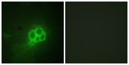Immunofluorescence analysis of HUVEC cells, using Tryptophan Hydroxylase Antibody. The picture on the right is blocked with the synthesized peptide.