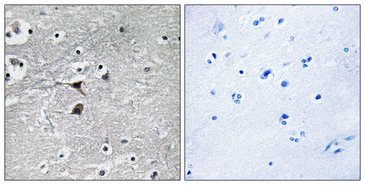 TPH1 / Tryptophan Hydroxylase Antibody - Immunohistochemistry analysis of paraffin-embedded human brain tissue, using Tryptophan Hydroxylase Antibody. The picture on the right is blocked with the synthesized peptide.
