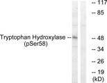 Western blot analysis of lysates from 293 cells treated with paclitaxel 1uM 24h, using Tryptophan Hydroxylase (Phospho-Ser58) Antibody. The lane on the right is blocked with the phospho peptide.