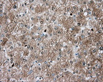 IHC of paraffin-embedded liver tissue using anti-TPMT mouse monoclonal antibody. (Dilution 1:50).