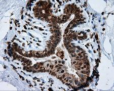 TPMT Antibody - IHC of paraffin-embedded breast tissue using anti-TPMT mouse monoclonal antibody. (Dilution 1:50).