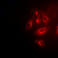 TPMT Antibody - Immunofluorescent analysis of TPMT staining in U2OS cells. Formalin-fixed cells were permeabilized with 0.1% Triton X-100 in TBS for 5-10 minutes and blocked with 3% BSA-PBS for 30 minutes at room temperature. Cells were probed with the primary antibody in 3% BSA-PBS and incubated overnight at 4 deg C in a humidified chamber. Cells were washed with PBST and incubated with a DyLight 594-conjugated secondary antibody (red) in PBS at room temperature in the dark.