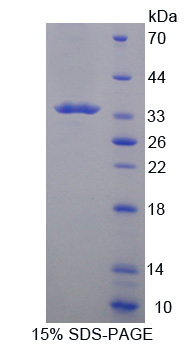Tpsb2 / Tryptase Beta 2 (Mouse Protein - Recombinant  Tryptase Beta 2 By SDS-PAGE