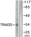 Western blot analysis of lysates from COS7 cells, using TRADD Antibody. The lane on the right is blocked with the synthesized peptide.