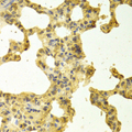 Immunohistochemistry of paraffin-embedded rat lung tissue.