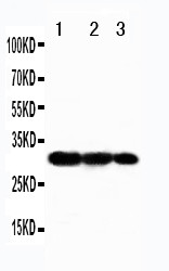WB of LMP1 / TRAF3 antibody. Recombinant Protein Detection Source:. E.coli derived -recombinant Human TRAF3, 30.6KD. (162aa tag+ R341-Y449). . Lane1: Recombinant Human TRAF3 Protein 5ng. Lane2: Recombinant Human TRAF3 Protein 2.5ng. Lane3: Recombinant Human TRAF3 Protein 1.25ng..