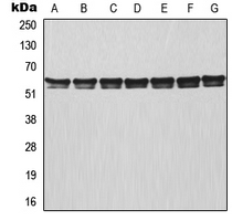 Western blot analysis of TRAF3 expression in MCF7 (A); HeLa (B); Raji (C); NIH3T3 (D); mouse lung (E); rat colon (F); PC12 (G) whole cell lysates.