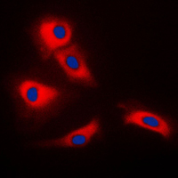 Immunofluorescent analysis of TRAF3 staining in HeLa cells. Formalin-fixed cells were permeabilized with 0.1% Triton X-100 in TBS for 5-10 minutes and blocked with 3% BSA-PBS for 30 minutes at room temperature. Cells were probed with the primary antibody in 3% BSA-PBS and incubated overnight at 4 C in a humidified chamber. Cells were washed with PBST and incubated with a DyLight 594-conjugated secondary antibody (red) in PBS at room temperature in the dark. DAPI was used to stain the cell nuclei (blue).