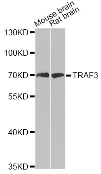 Western blot analysis of extracts of various cell lines, using TRAF3 antibody at 1:500 dilution. The secondary antibody used was an HRP Goat Anti-Rabbit IgG (H+L) at 1:10000 dilution. Lysates were loaded 25ug per lane and 3% nonfat dry milk in TBST was used for blocking. An ECL Kit was used for detection and the exposure time was 90s.