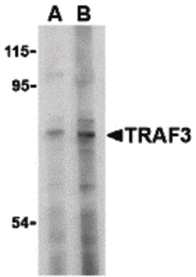 Western blot of TRAF3 in HeLa cell lysate with TRAF3 antibody at (A) 2 and (B) 4 ug/ml.