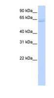 TRAF6 Antibody - TRAF6 antibody Western blot of 293T cell lysate. This image was taken for the unconjugated form of this product. Other forms have not been tested.