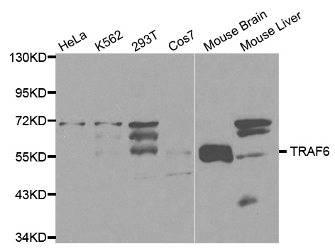 TRAF6 Antibody - Western blot analysis of extracts of various cell lines, using TRAF6 antibody at 1:1000 dilution. The secondary antibody used was an HRP Goat Anti-Rabbit IgG (H+L) at 1:10000 dilution. Lysates were loaded 25ug per lane and 3% nonfat dry milk in TBST was used for blocking.