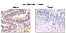 TRAIL-R3 / DCR1 Antibody - Immunohistochemistry detection of endogenous TRAIL-R3 in paraffin-embedded human carcinoma tissues (colon, tonsil) using mAb to TRAIL-R3 (TR3.06) .