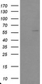 HEK293T cells were transfected with the pCMV6-ENTRY control (Left lane) or pCMV6-ENTRY TRAIP (Right lane) cDNA for 48 hrs and lysed. Equivalent amounts of cell lysates (5 ug per lane) were separated by SDS-PAGE and immunoblotted with anti-TRAIP.