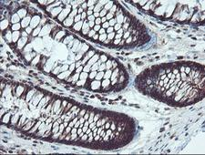 TRAIP / TRIP Antibody - IHC of paraffin-embedded Human colon tissue using anti-TRAIP mouse monoclonal antibody. (Heat-induced epitope retrieval by 10mM citric buffer, pH6.0, 100C for 10min).