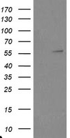 TRAIP / TRIP Antibody - HEK293T cells were transfected with the pCMV6-ENTRY control (Left lane) or pCMV6-ENTRY TRAIP (Right lane) cDNA for 48 hrs and lysed. Equivalent amounts of cell lysates (5 ug per lane) were separated by SDS-PAGE and immunoblotted with anti-TRAIP.