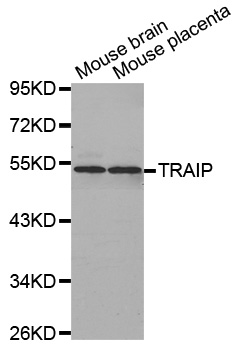 TRAIP / TRIP Antibody - Western blot analysis of extracts of various cell lines.