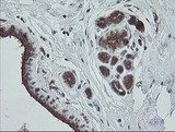 IHC of paraffin-embedded Human breast tissue using anti-TRAPPC4 mouse monoclonal antibody.