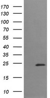 HEK293T cells were transfected with the pCMV6-ENTRY control (Left lane) or pCMV6-ENTRY TRAPPC4 (Right lane) cDNA for 48 hrs and lysed. Equivalent amounts of cell lysates (5 ug per lane) were separated by SDS-PAGE and immunoblotted with anti-TRAPPC4.