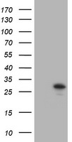 TRAPPC4 / Synbindin Antibody - HEK293T cells were transfected with the pCMV6-ENTRY control (Left lane) or pCMV6-ENTRY TRAPPC4 (Right lane) cDNA for 48 hrs and lysed. Equivalent amounts of cell lysates (5 ug per lane) were separated by SDS-PAGE and immunoblotted with anti-TRAPPC4.