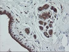 TRAPPC4 / Synbindin Antibody - IHC of paraffin-embedded Human breast tissue using anti-TRAPPC4 mouse monoclonal antibody.