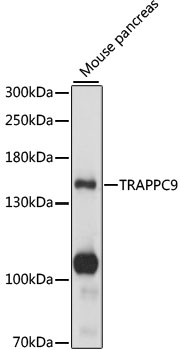 TRAPPC9 Antibody - Western blot analysis of extracts of mouse pancreas, using TRAPPC9 antibody at 1:1000 dilution. The secondary antibody used was an HRP Goat Anti-Rabbit IgG (H+L) at 1:10000 dilution. Lysates were loaded 25ug per lane and 3% nonfat dry milk in TBST was used for blocking. An ECL Kit was used for detection and the exposure time was 1s.