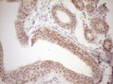 Immunohistochemical staining of paraffin-embedded Adenocarcinoma of Human breast tissue using anti-TRIB3 mouse monoclonal antibody. (Heat-induced epitope retrieval by 1 mM EDTA in 10mM Tris, pH8.5, 120C for 3min,