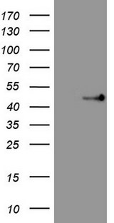 HEK293T cells were transfected with the pCMV6-ENTRY control (Left lane) or pCMV6-ENTRY TRIB3 (Right lane) cDNA for 48 hrs and lysed. Equivalent amounts of cell lysates (5 ug per lane) were separated by SDS-PAGE and immunoblotted with anti-TRIB3.