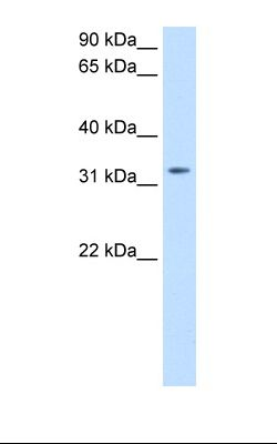 Transfected 293T cell lysate. Antibody concentration: 0.5 ug/ml. Gel concentration: 12%.  This image was taken for the unconjugated form of this product. Other forms have not been tested.