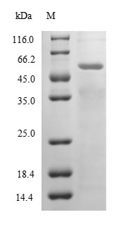6GAL Protein - (Tris-Glycine gel) Discontinuous SDS-PAGE (reduced) with 5% enrichment gel and 15% separation gel.