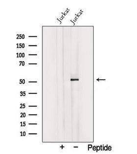 TRIM15 Antibody - Western blot analysis of extracts of Jurkat cells using TRIM15 antibody. The lane on the left was treated with blocking peptide.