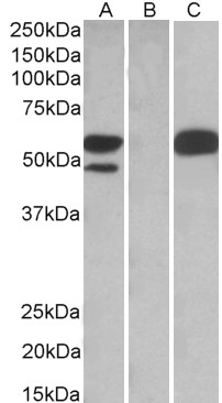 HEK293 lysate (10ug protein in RIPA buffer) overexpressing Human TRIM21 with C-terminal MYC tag probed with (1ug/ml) in Lane A and probed with anti-MYC Tag (1/1000) in lane C. Mock-transfected HEK293 probed (1mg/ml) in Lane B. Detect