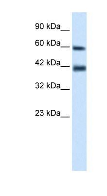 TRIM31 antibody LS-B1104 Western blot of Jurkat lysate.  This image was taken for the unconjugated form of this product. Other forms have not been tested.