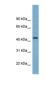 TRIM31 / RNF Antibody - TRIM31 antibody Western blot of Fetal Small Intestine lysate. This image was taken for the unconjugated form of this product. Other forms have not been tested.