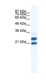 TRIM34 / RNF21 antibody LS-B1106 Western blot of Jurkat lysate.  This image was taken for the unconjugated form of this product. Other forms have not been tested.