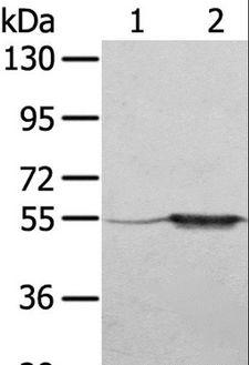 TRIM35 Antibody - Western blot analysis of A375 cell and human fetal muscle tissue, using TRIM35 Polyclonal Antibody at dilution of 1:550.