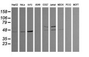 Western blot of extracts (35 ug) from 9 different cell lines by using anti-TRIM38 monoclonal antibody (HepG2: human; HeLa: human; SVT2: mouse; A549: human; COS7: monkey; Jurkat: human; MDCK: canine; PC12: rat; MCF7: human).