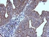 IHC of paraffin-embedded Adenocarcinoma of Human ovary tissue using anti-TRIM38 mouse monoclonal antibody.