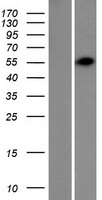 TRIM62 Protein - Western validation with an anti-DDK antibody * L: Control HEK293 lysate R: Over-expression lysate