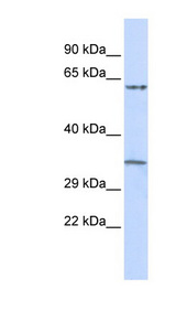 TRIM8 / GERP Antibody - TRIM8 / GERP antibody Western blot of Placenta lysate. This image was taken for the unconjugated form of this product. Other forms have not been tested.