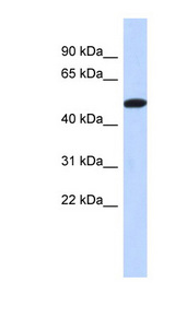 TRIML2 Antibody - TRIML2 antibody Western blot of Placenta lysate. This image was taken for the unconjugated form of this product. Other forms have not been tested.