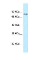 LRRFIP1 antibody Western blot of Small Intestine lysate. Antibody concentration 1 ug/ml.  This image was taken for the unconjugated form of this product. Other forms have not been tested.
