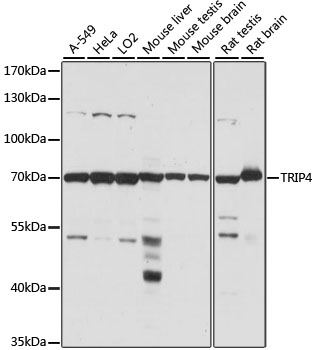 TRIP4 / ASC-1 Antibody - Western blot analysis of extracts of various cell lines, using TRIP4 antibody at 1:1000 dilution. The secondary antibody used was an HRP Goat Anti-Rabbit IgG (H+L) at 1:10000 dilution. Lysates were loaded 25ug per lane and 3% nonfat dry milk in TBST was used for blocking. An ECL Kit was used for detection and the exposure time was 30s.