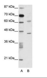 TRMT1L Antibody - A: Marker, B: Jurkat Cell Lysate.  This image was taken for the unconjugated form of this product. Other forms have not been tested.