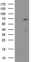 TRMT2A Antibody - HEK293T cells were transfected with the pCMV6-ENTRY control (Left lane) or pCMV6-ENTRY TRMT2A (Right lane) cDNA for 48 hrs and lysed. Equivalent amounts of cell lysates (5 ug per lane) were separated by SDS-PAGE and immunoblotted with anti-TRMT2A.