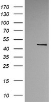 TRMU Antibody - HEK293T cells were transfected with the pCMV6-ENTRY control (Left lane) or pCMV6-ENTRY TRMU (Right lane) cDNA for 48 hrs and lysed. Equivalent amounts of cell lysates (5 ug per lane) were separated by SDS-PAGE and immunoblotted with anti-TRMU.