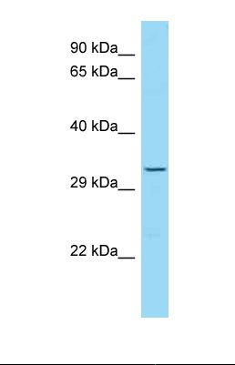 Western blot of Human HT1080 Whole cell . TRO antibody dilution 1.0 ug/ml.  This image was taken for the unconjugated form of this product. Other forms have not been tested.