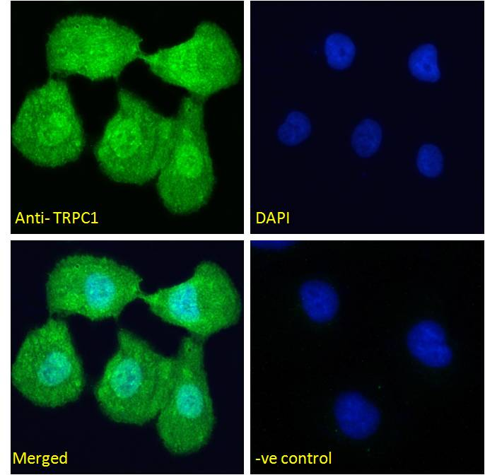 Immunofluorescence analysis of paraformaldehyde fixed U2OS cells, permeabilized with 0.15% Triton. Primary incubation 1hr (10ug/ml) followed by Alexa Fluor 488 secondary antibody (4ug/ml), showing nuclear and cytoplasmic staining. The nuclear stai